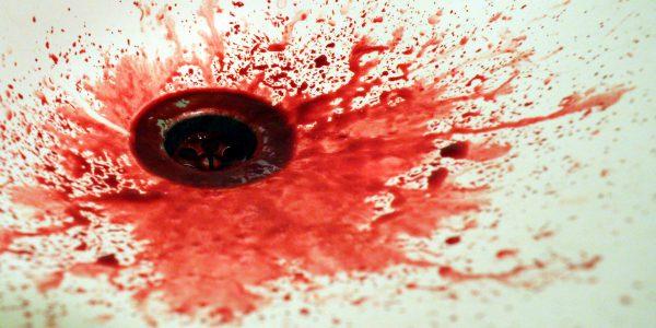 Krwotok po wyrwaniu zęba – co robić?