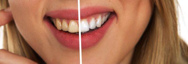 Jak wybielić żółte zęby? Czy zawsze jest to możliwe?
