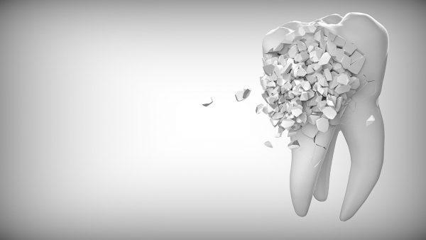 Co jeść po wyrwaniu zęba?