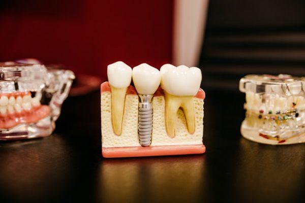Implanty zębowe – jak o nie dbać i jakie wybrać?