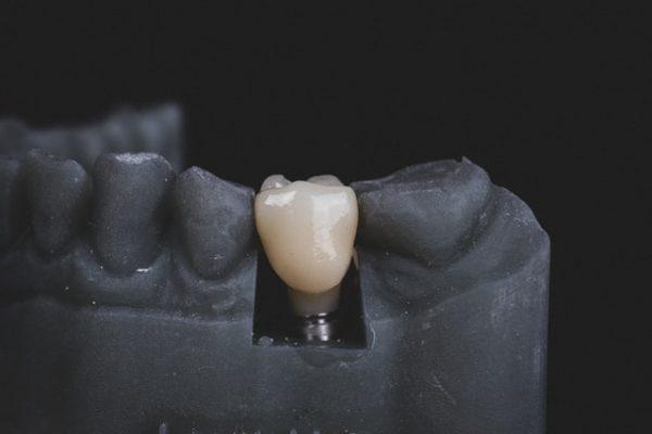 Czy zakładanie implantów boli? Odpowiadamy na pytanie.