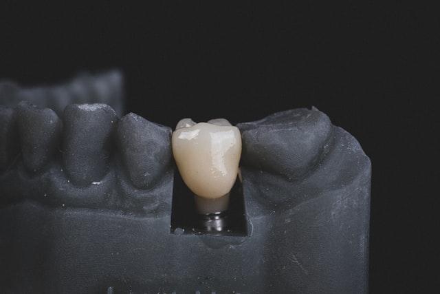 Czy-zakladanie-implantow-boli